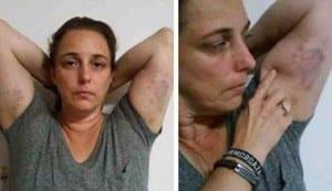 Tania Bruguera muestra las marcas de la violencia de que fue víctima el pasado domingo durante una manifestación pacífica en La Habana.